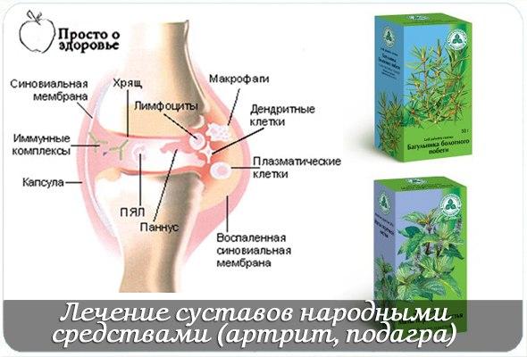 Лечение суставов рук народными средствами в домашних условиях у взрослых